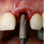 Immediate Placement Ritter Implants Maurice Salama