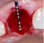 Placement Of Ritter Implants In The Anterior Maxilla With Bone Reduction And Osseodensification