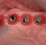 Posterior Reconstruction Ritter Spiral implant